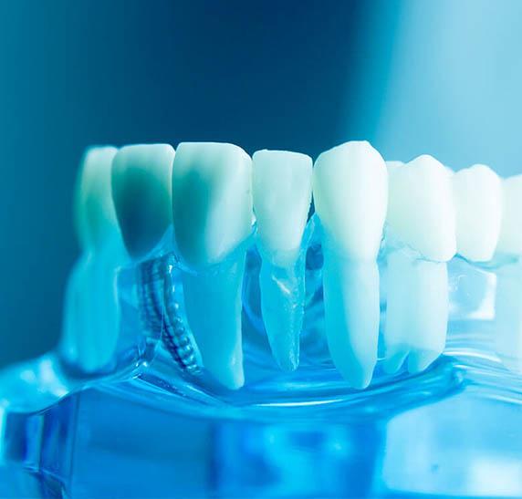 Implante dentario no rio de janeiro- SB-Ortoimplante -Clinica-Odontologica-dentista no-Rio-de-janeiro-