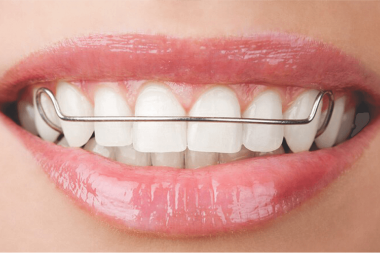 ORTODONTIA no rj-SB -Ortoimplante-Clinica-Odontologica-no-Rio-de-janeiro-implante dentário 4