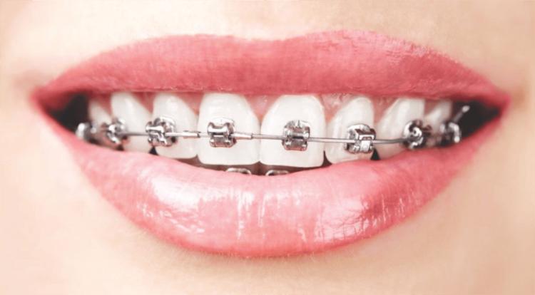 ORTODONTIA no rj-SB -Ortoimplante-Clinica-Odontologica-no-Rio-de-janeiro-implante dentário 5