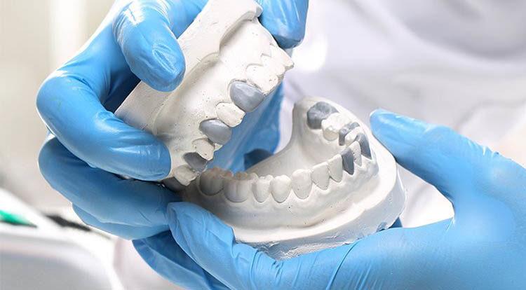 prótese dentária no rj-SB-Ortoimplante -Clinica-Odontologica-dentista-no-Rio-de-janeiro-aparelho-fixo-750x414