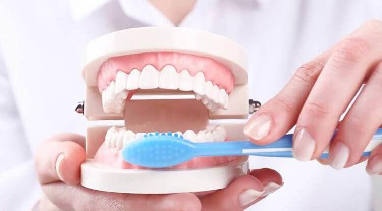 prevençao-SB-Ortoimplante -Clinica-Odontologica-no-Rio-de-janeiro-aparelho-fixo-750x414