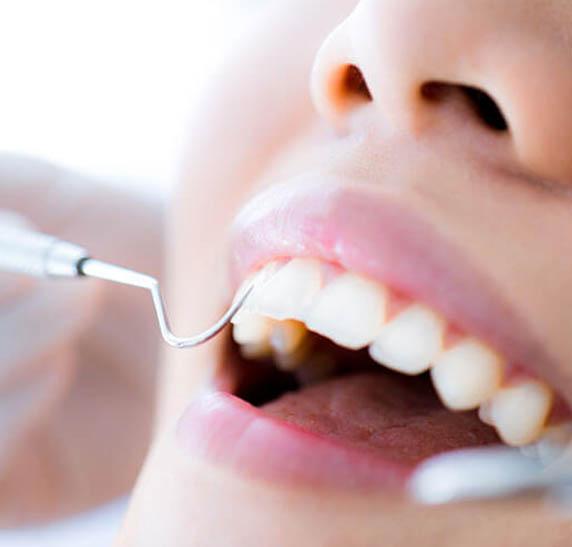 tratamento de canal 3- SB-Ortoimplante -Clinica-Odontologica-dentista-no-Rio-de-janeiro-